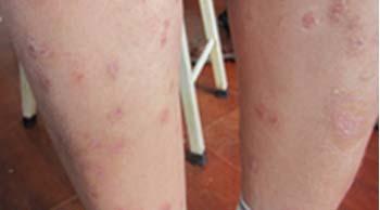 红皮病型银屑病如何治疗