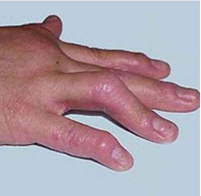 银屑病早期症状表现有哪些
