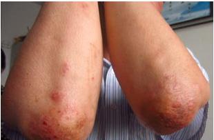 初期银屑病患者会出现哪些症状