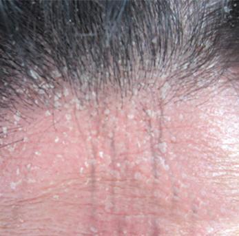 女性银屑病患者面部皮